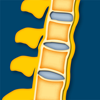 Spondyloarthritiden I